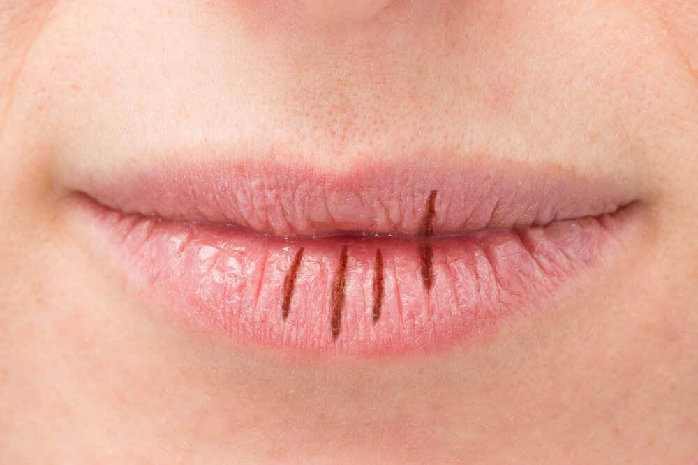 herbal remedies to deal with cottonmouth